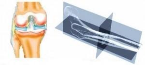 Автоматизация моделирования и анализа расчета фрагмента нижней конечности человека