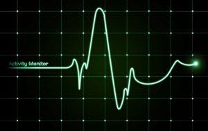 kardiogramma-serdtsa-715x451